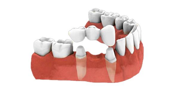 Dental Bridges & Crowns